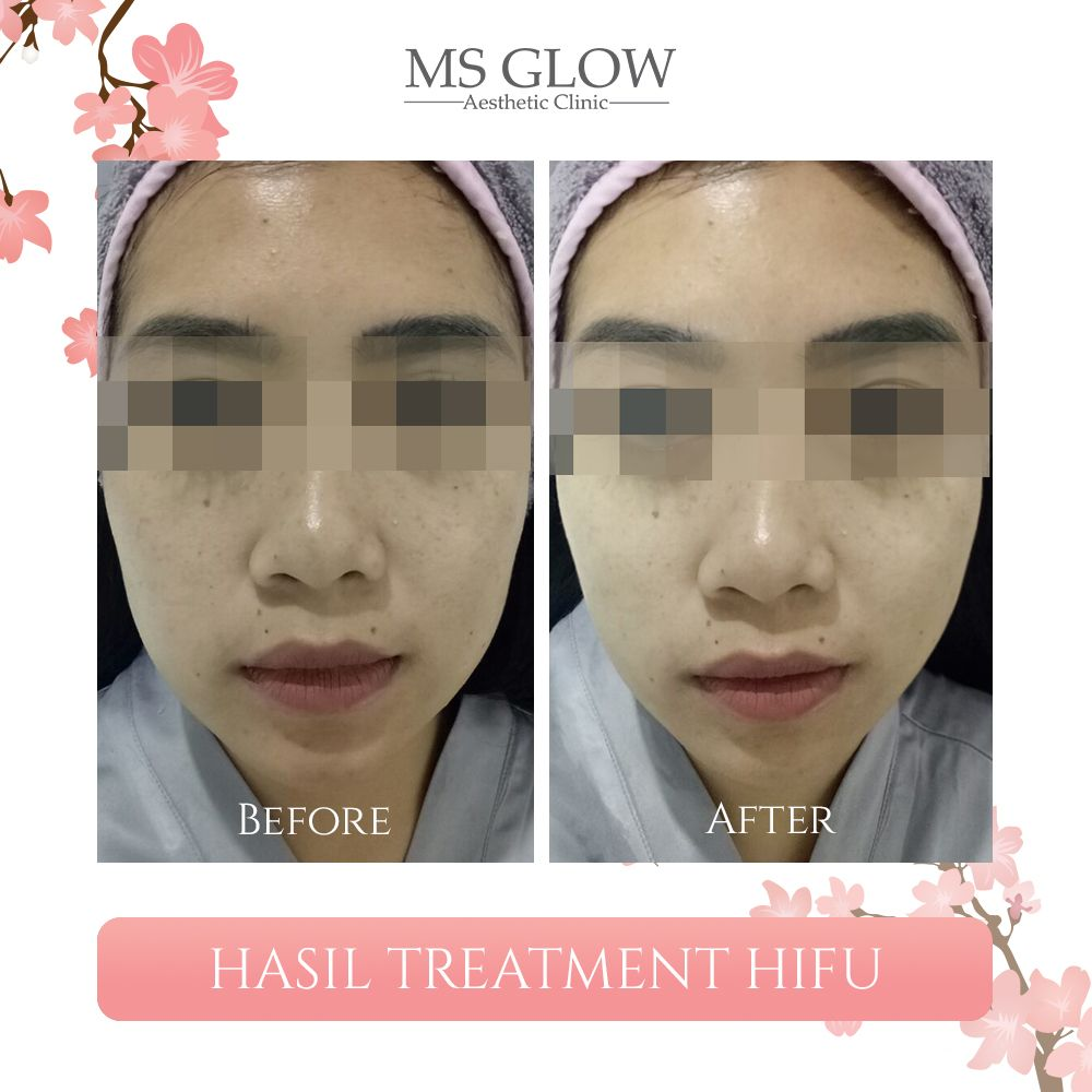 Hasil Treatment HIFU Ms Glow