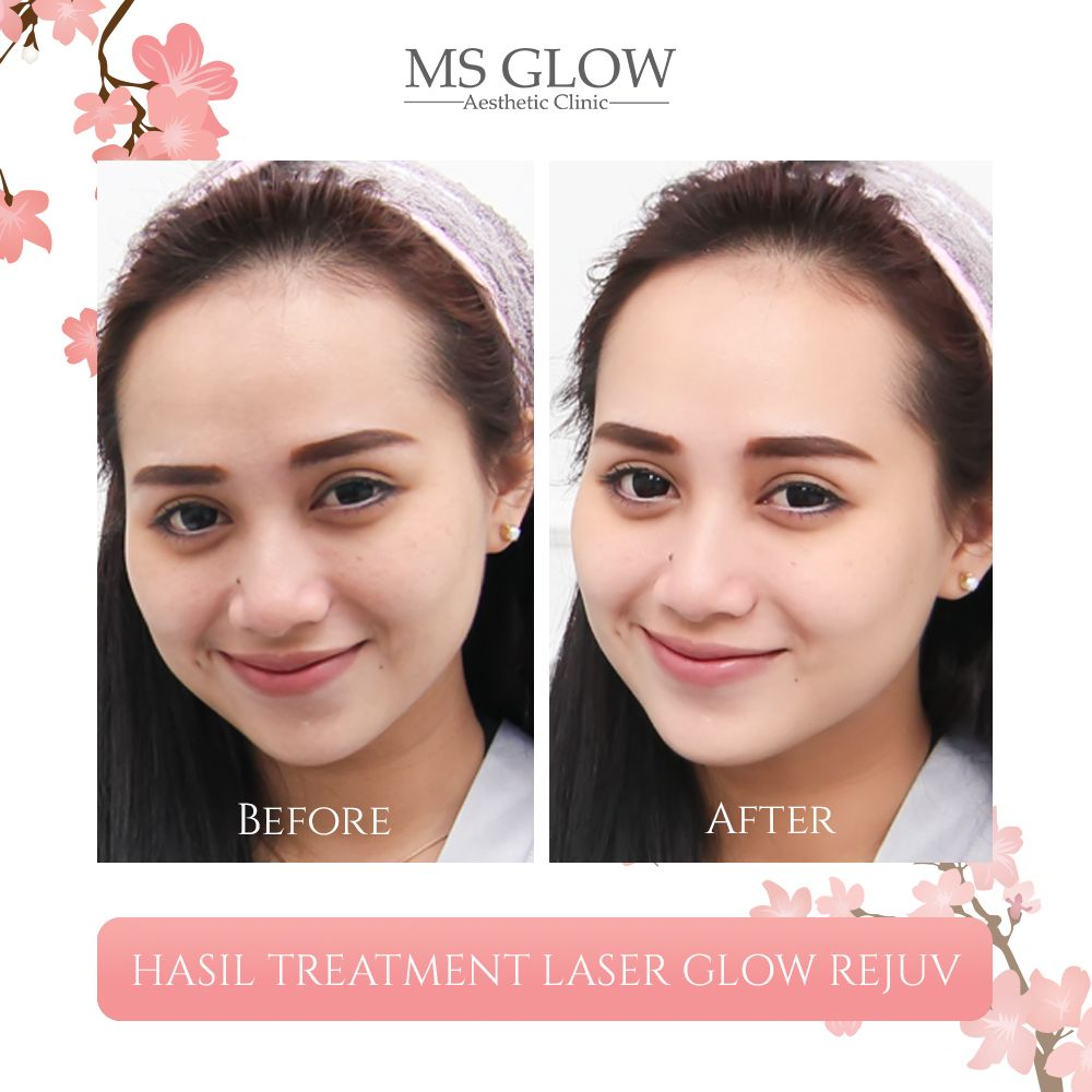Hasil Treatment Laser Glow Rejuv Ms Glow