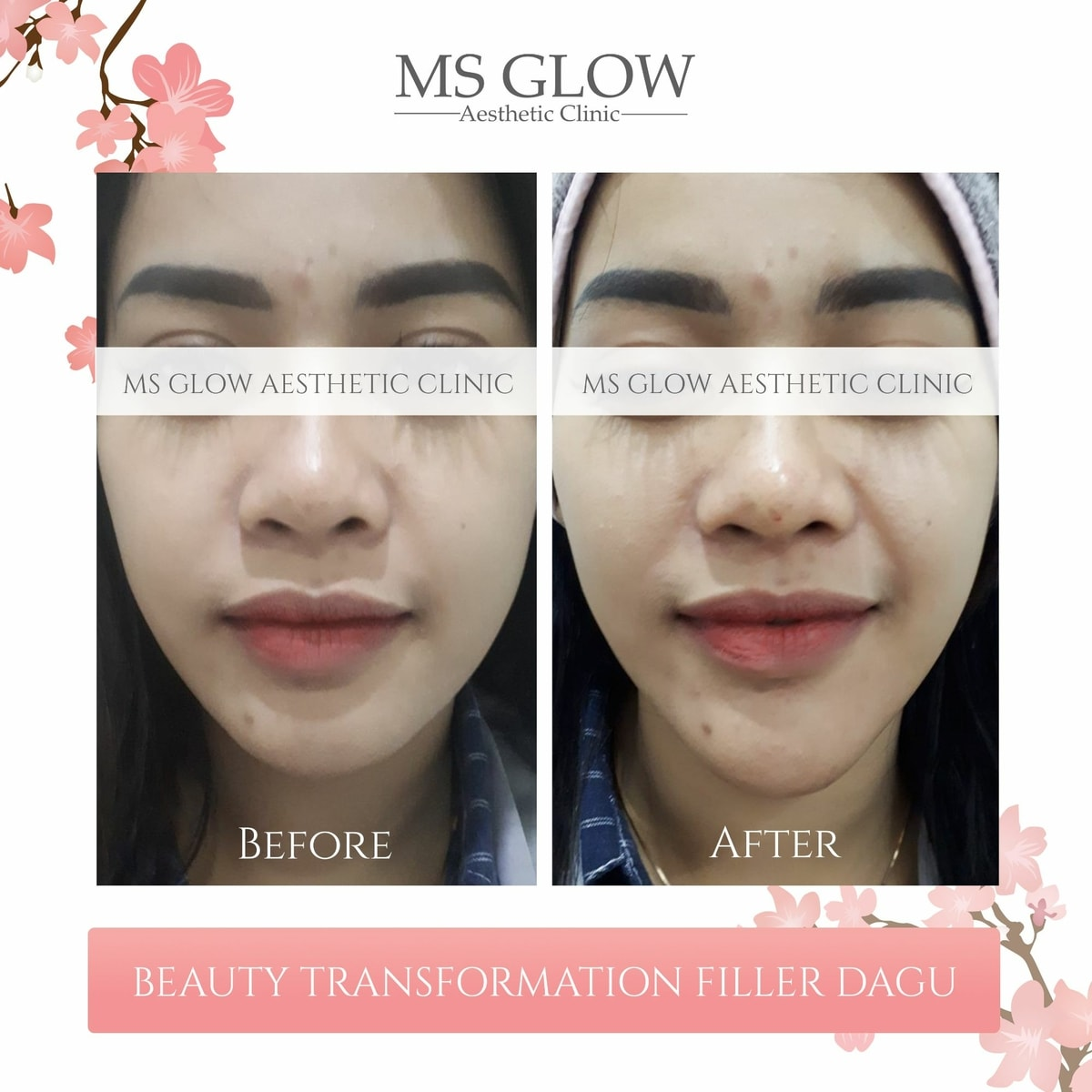 Beauty Transformation Filler Dagu Ms Glow