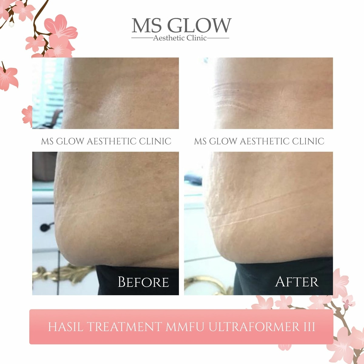 Hasil Treatment MMFU Ultraformer III Ms Glow