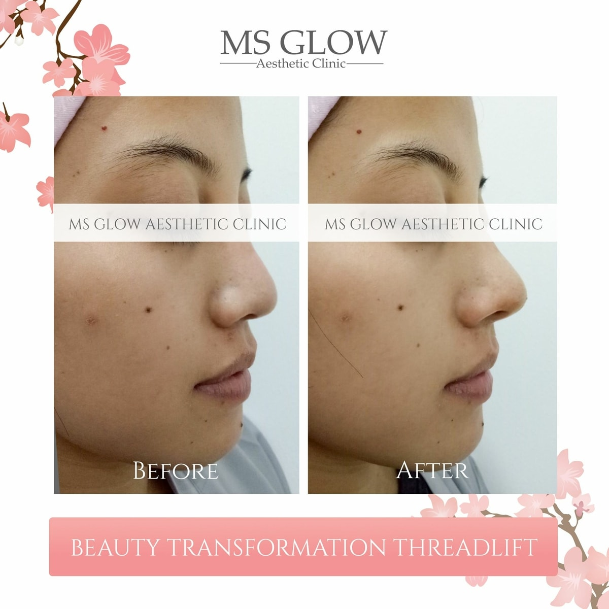 Beauty Transformer Threadlift