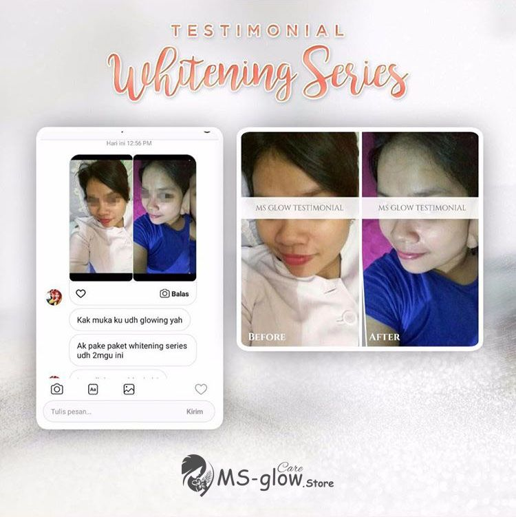 review ms glow whitening series