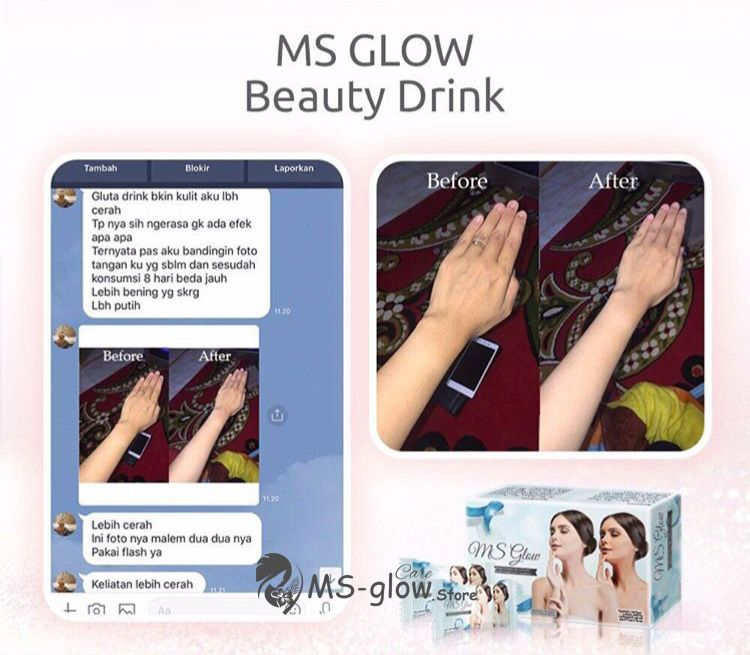 Testimoni Beauty Drink MS Glow