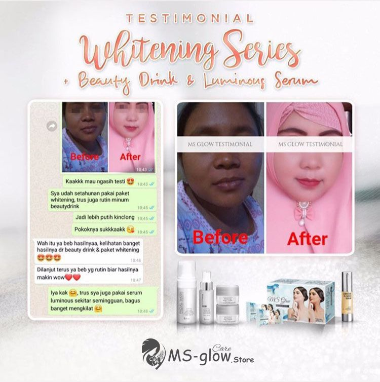 Testimoni Whitening Series Ms Glow