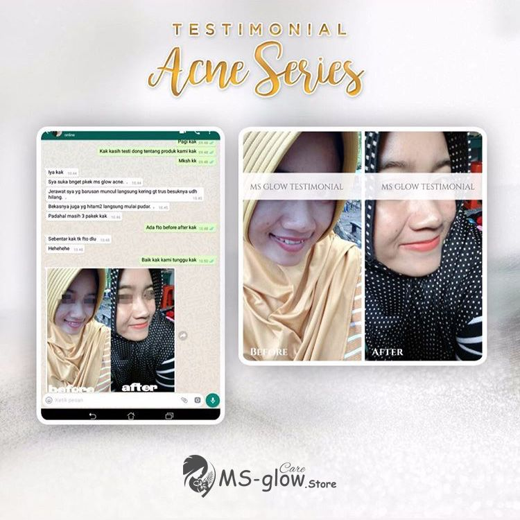 Testimoni MS Glow Acne Series